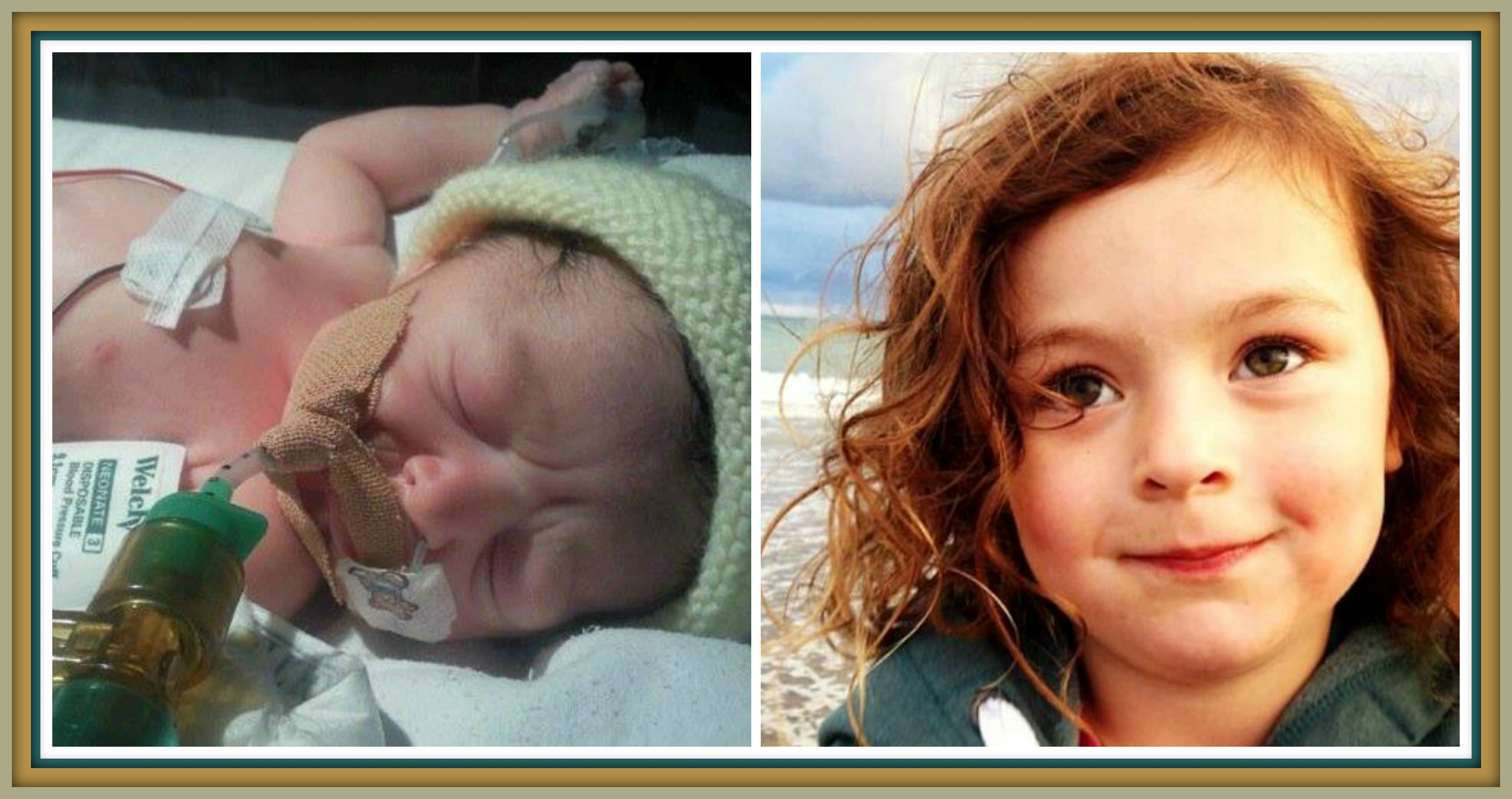 Maisy after her birth (left) and now (right)